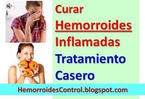 Cura Natural para Hemorroides Externas Inflamadas: Remedios Naturales. Hemorroides Control Cura - Cómo curar las hemorroides y almorranas de manera natural: Cura Natural para Almorranas Externas Inflamadas Sangrantes.