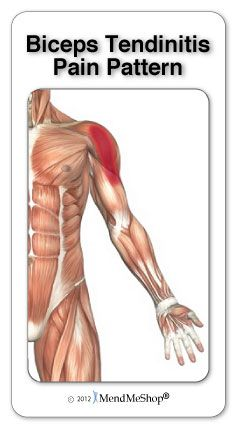 Shoulder tendonitis (tendinitis) usually causes pain and tenderness in the side and front of the shoulder. If you have shoulder tendonitis you may also have an inability to move your arm or hold it in different positions. Other common symptoms of this injury include pain or a dull ache in your shoulder and/or upper arm, pain when using your arm (either reaching around your body to the front, side, back or overhead), pain that radiates down your arm. #mendmeshop