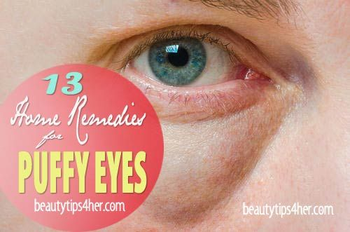 13 Natural Remedies for Puffy Eyes | Beauty and MakeUp Tips