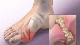 L'Acide urique Cristallisé est la cause de la Goutte, de l'arthrite, l'arthrose et de vos douleurs articulaires !! Voici 5 Solutions naturelles pour l'éliminer de votre corps …