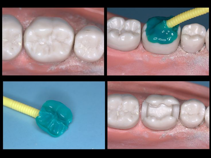 where can i buy north face Dentaltown   Occlusal Stamp Technique for an MOD Composite  Occlusal Stamp Technique for an MOD Composite by Dr  Cory Glenn DDS  Introduction  Old technique done by many but I  39 ve only seen it done on occlusal caries and usually utilizing a clear vps  This variation allows it to be used for most any filling provided the pre op anatomy of the tooth is intact  Dentaltown Message Board  gt  Restorative Dentistry  gt  http   www dentaltown com MessageBoard thread aspx s 2 amp f 216 amp t 234761 amp v 1