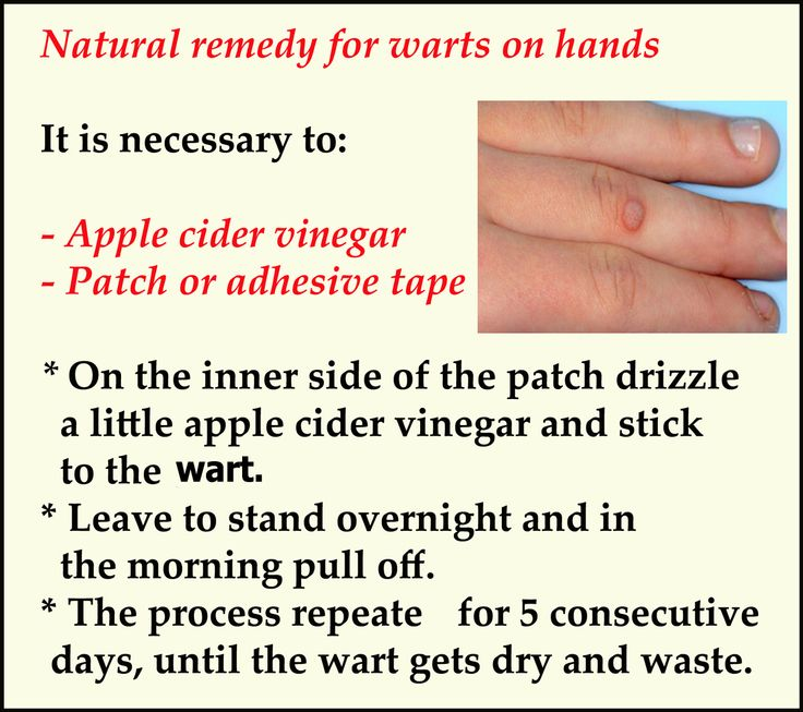 How to remove #wart from hands ?