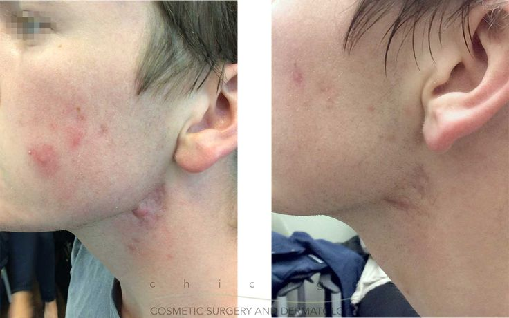 June is #acne awareness month. Schedule a consultation with our Providers to see if #laser resurfacing like ExcelV or SmartXide DOT CO2 can help the appearance of your acne scarring! Real, untouched patient results with Dr. Carolyn Jacob. #drcarolynjacob #acnetreatment #acnecare #acnescars #acneskin #acneproneskin #Chicago #CCSD  http://bit.ly/2rgj5D2