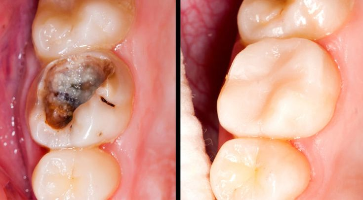 Tooth Decay Image 2: This is also a great image for my reference as it shows tooth decay in a severe state yet different in colour and shape to the other image. (Ref: Tooth Decay Image 1). This provides me with a different style of tooth to sculpt as part of my design.
