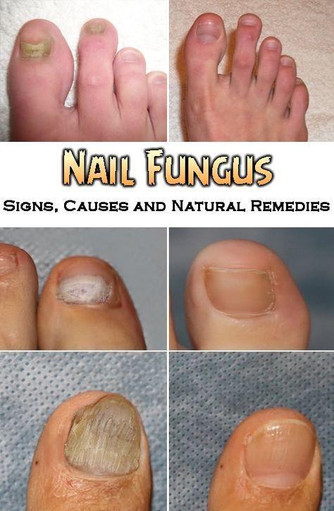 Nail Fungus – Signs, Causes and Natural Remedies | Toenail Fungus ...