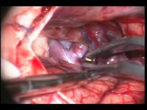 Internal Carotid Artery Aneurysm