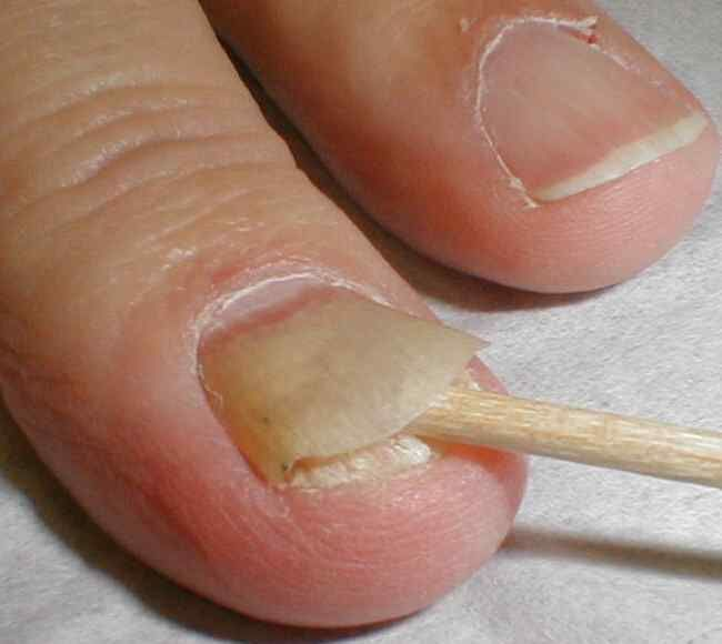 Toenail Fungus Treatment | Natural Remedy | Vegalicious