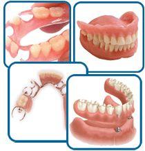 les prothèses dentaires   est un ensemble de techniques et de moyens destinés  chez le dentiste.  par exemple (couronnes, bridges, inlay core…) ou  plus  l'orthodontie sont des soins pour tarifs , sont très  dresse par la remboursement de l'assurance maladie. http://devis-mutuelle-dentaire.fr/Remboursement-prothese-dentaire.aspx
