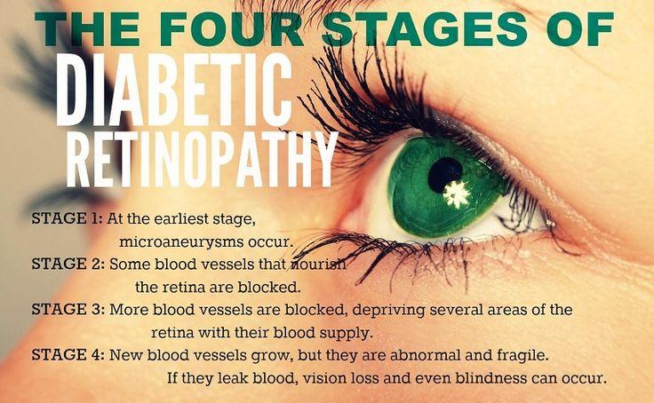 Uncontrolled Diabetic ~ Diabetic Retinopathy #diabetic #diabetes #eye…