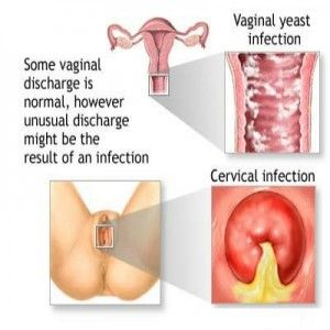 infection sign vaginal