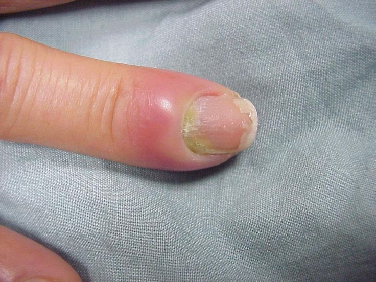 Nail Infection - http://latestnaildesign.com/104-nail-infection.html