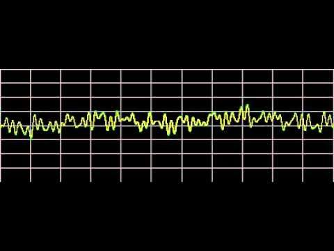 ▶ Sinusitis - Rife Frequencies - YouTube