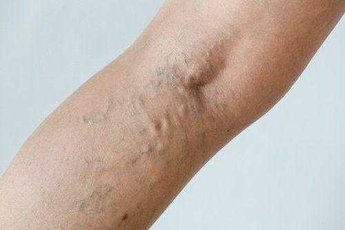 Krampfadern sind Venen, die sich durch zu schwache Venenwände oder schwaches Bindegewebe erweitern.