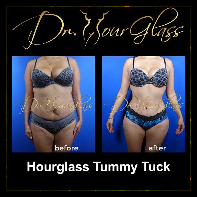 Another glamorous result of Hourglass Tummy Tuck procedure. This procedure will certainly improve your abdomen and will make it flat and firm. Aside from that this procedure will transform your body into an hourglass shape that you will surely love.