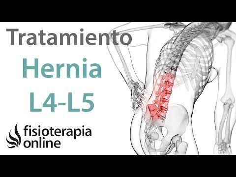 Hernia discal, ejercicios para mejorar el dolor lumbar / Fisioterapia a tu alcance - YouTube Más #lumbagoremedios