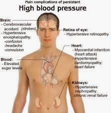 Atherosclerosis, Cholesterol, Arteriosclerosis, fat, heart attack, heart, blockage, stroke, thrombosis, aneurysm, blood pressure