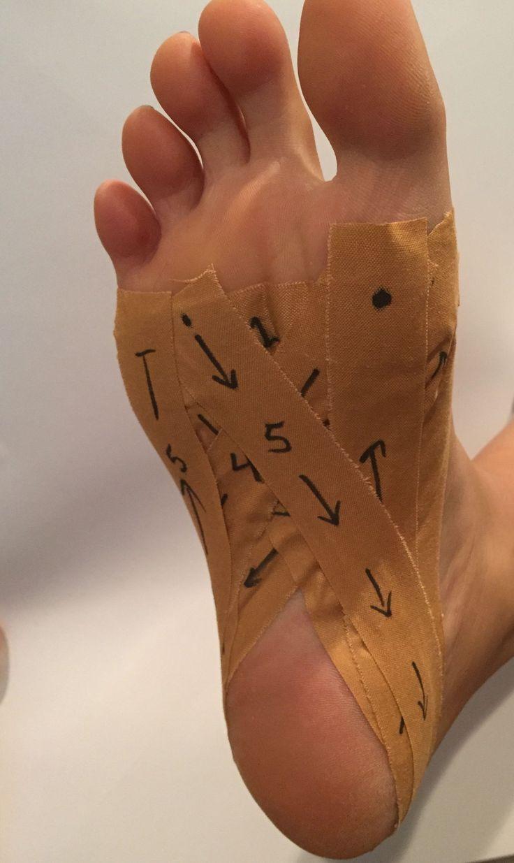 Heel Pain Plantar Fasciitis - Foot Health Facts