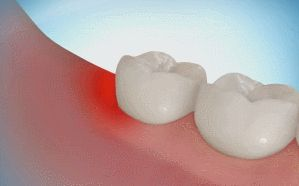 Proceso de extracción del tercer molar  o la comúnmente llamada muela del juicio. #gif