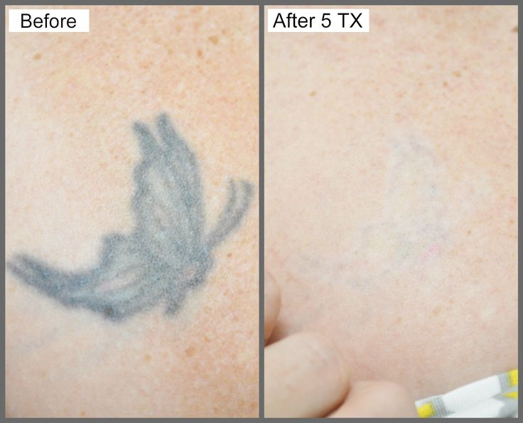 21 best picosure tattoo removal images on pinterest for Picosure tattoo removal maryland