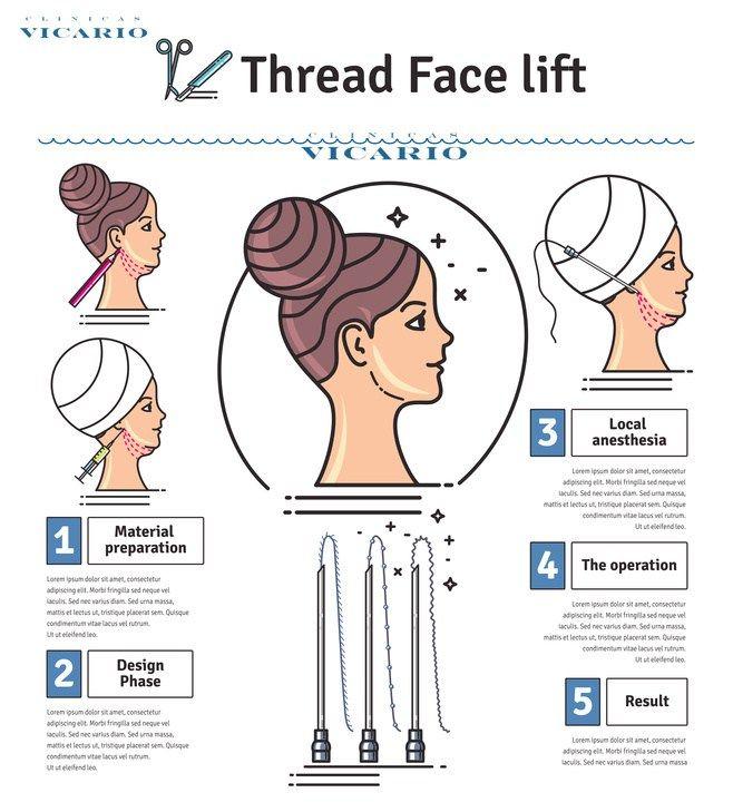 best 25 thread face lift ideas on pinterest thread lift. Black Bedroom Furniture Sets. Home Design Ideas