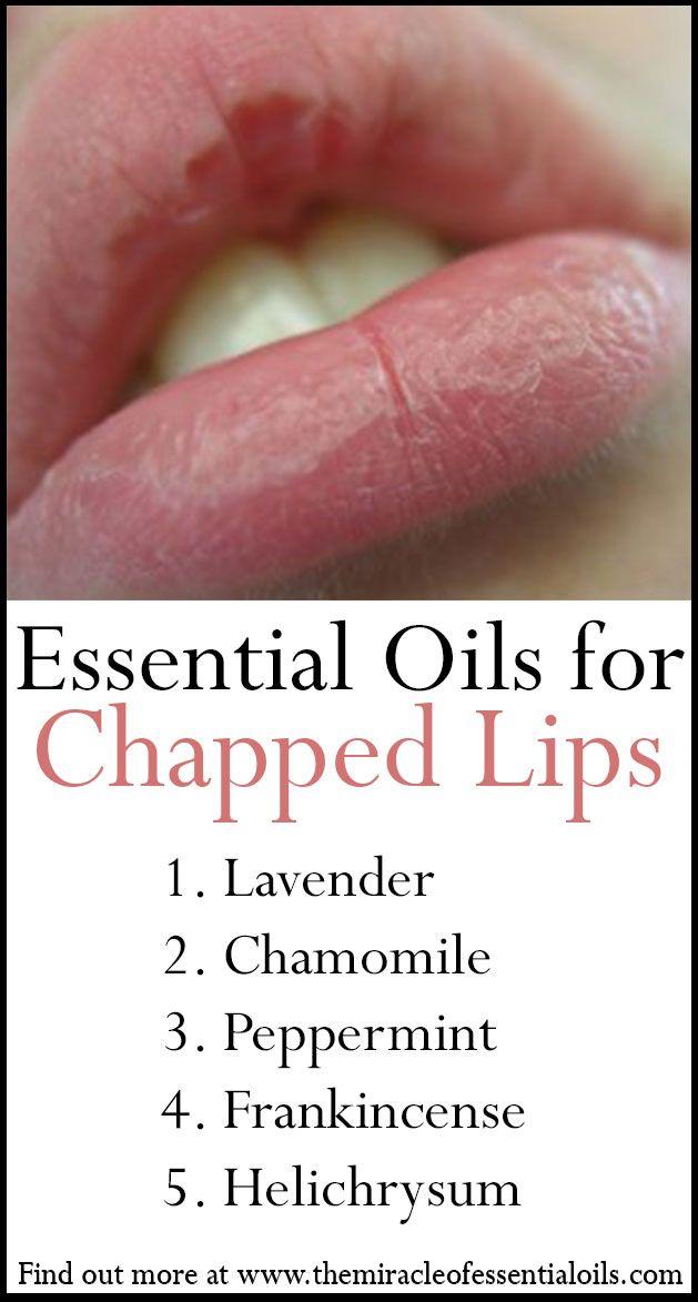 Best 25 Dry Lips Remedy Ideas On Pinterest Beauty Hacks