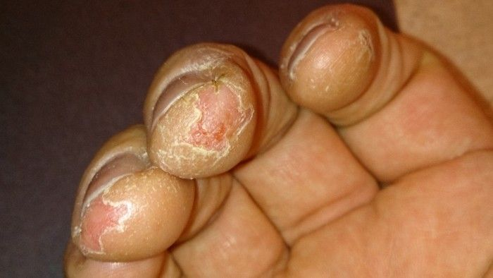 dry fingers skin peeling off eczema