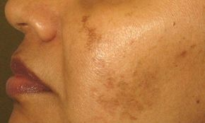 Stir a teaspoon of lemon juice in a teaspoon of turmeric powder. Apply the mixture on any affected area. Leave it on for 15 minutes Rinse your face thoroughly Do not expose your skin to sun. Apply the remedy before taking a shower, and apply it once or twice a day until your condition improves.  This home remedy is based on the principles of Ayurveda, an ancient Indian science of healing.