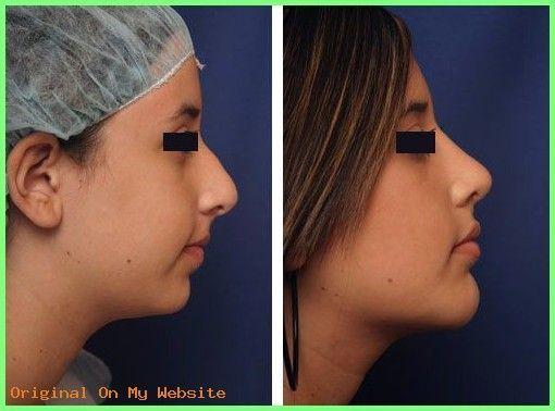 Nasenkorrektur Kosten | Chin Surgery – Mentoplasty…