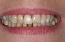Crowns are made of porcelain, precious metal or porcelain pressed to metal and are used to restore cracked, worn, misshapen or discolored teeth.