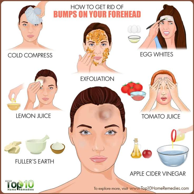 what causes pimples on the forehead