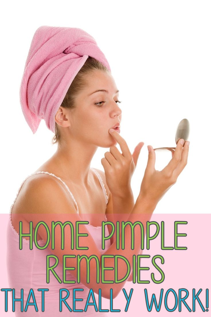 Home Pimple Remedies