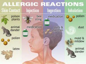 Macam Macam Jenis Reaksi Alergi Yang Perlu Anda Ketahui