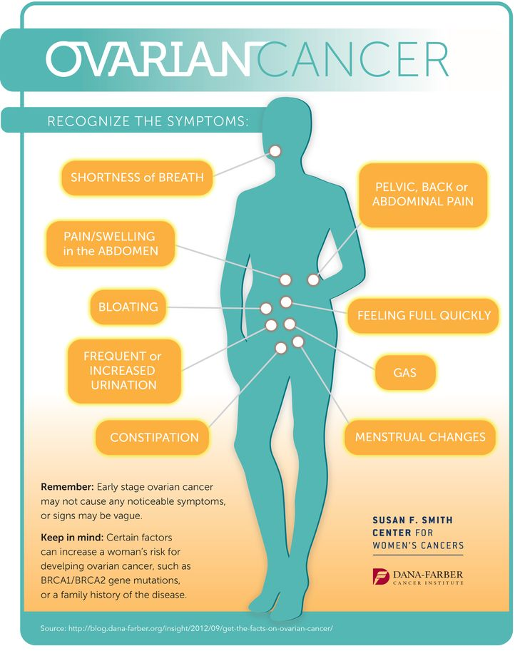 Do you know the symptoms of ovarian cancer? Share this infographic with women in your life and help spread awareness for this disease. #ovariancancer