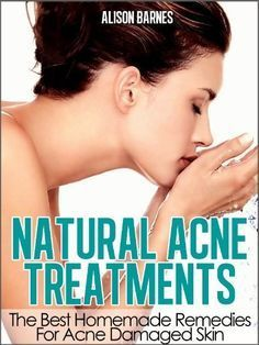Natural Acne Treatments: Home Remedies For An Acne Cure. Treatment of Teenage Acne, Adult Acne, Acne Scars and Back Acne