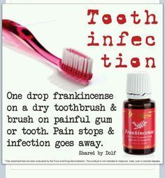 Frankincense for tooth pain