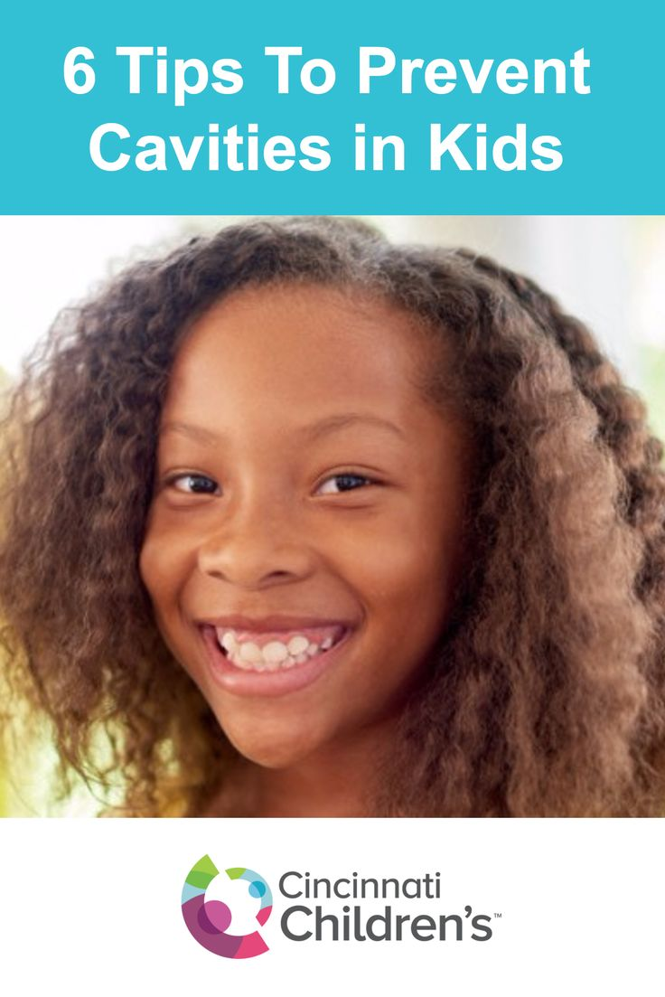 When you think about the most common infectious disease in children, tooth decay probably isn't what comes to mind first. However, 51% of Ohio children have it. Tooth decay in kids is responsible for the loss of over 51 million hours of school. Read these 6 tips to help prevent cavities in kids.