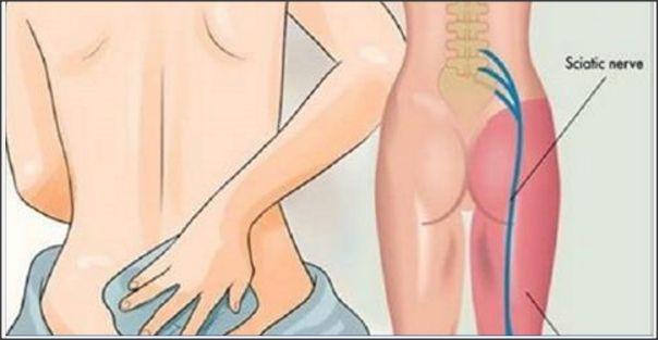 A dor ciática é extremamente desagradável e compromete bastante a qualidade de vida de quem tem esse problema. Se você é uma das vítimas dessa dor, sabe bem o que estamos dizendo. Mas acreditamos que seu sofrimento está perto do fim. Basta ler este artigo e seguir as orientações dele. O nervo ciático é o …