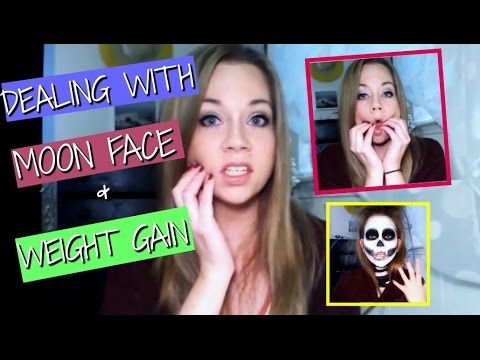 Dealing with Moon Face & Weight Gain (Funny!) - YouTube