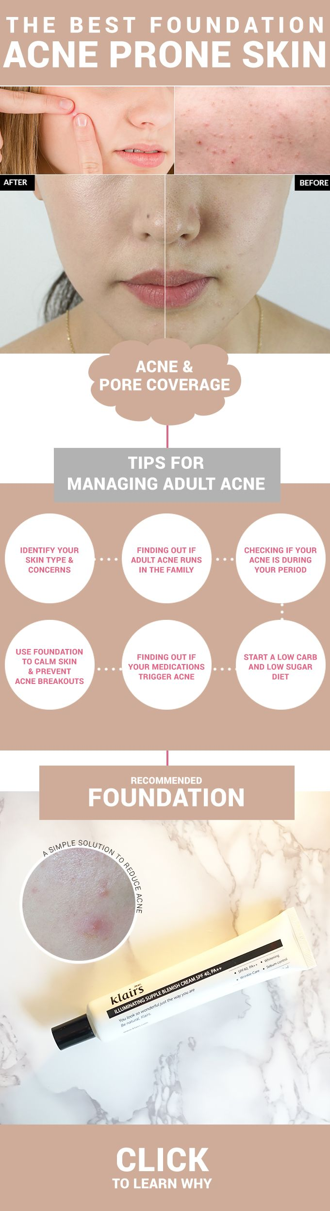 Having acne prone skin cna make finding makeup difficult. But finding the right makeup can actually heal acne! Find out how and why with our recommendation!  http://www.wishtrendglam.com/the-best-foundation-for-acne-prone-skin/  #foundation #routine #makeup #bbcream #klairs #tips #tricks #acne #pimples #acneprone #skin #pores #adultacne