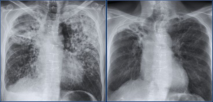 .xrays Lung disease, X ray, Pneumonia causes