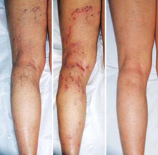 Another cosmetic testimonial - Reduction of spider veins with use of PowerStrips. divingmom.fgxpress.com