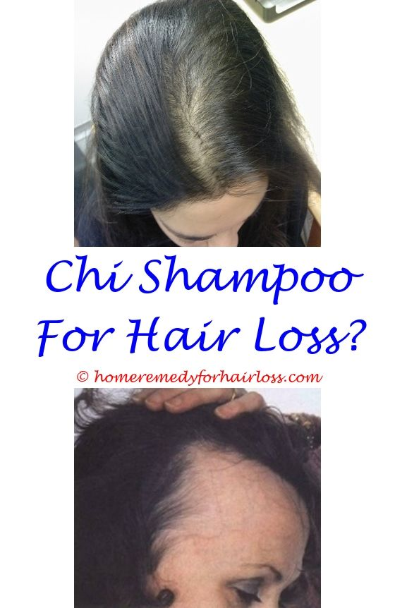 high blood pressure medicine and hair loss - loreal feria starry night and hair loss.dandruff shampoo that does not cause hair loss prinivil side effects hair loss deca side effects hair loss 1996316730