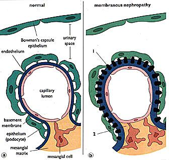 """membranous glomerulonephritis (""""spike and dome"""" appearance)"""