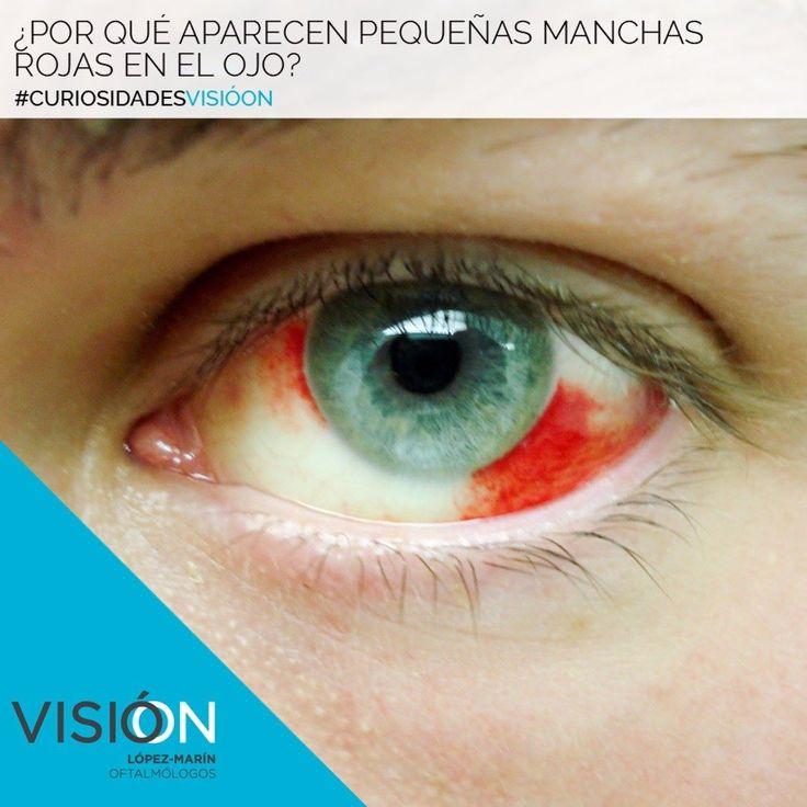 Por causa de una hemorragia subconjuntival por la rotura de algunos de los vasos sanguíneos o capilares que existen en esa zona.  Los vasos sanguíneos pueden romperse por muchas causas algunas veces ni nos damos cuenta. Por un estornudo al vomitar por un pequeño golpe un esfuerzo por frotarnos los ojos con demasiada fuerza  Otra causa menor frecuente es por la hipertensión arterial.  Si la mancha es exagerada frecuente y no vemos que mejora deberemos acudir al oftalmólogo de inmediato.