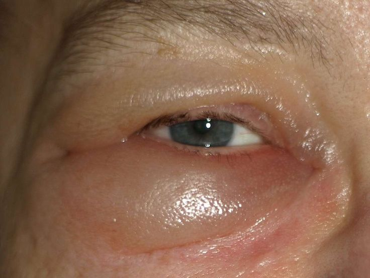 Sunken eyes: Causes, pictures, and how to get rid of them ...