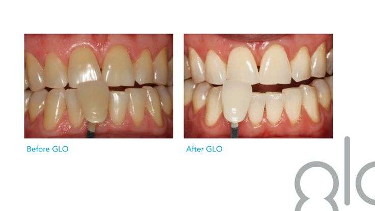 Glo Teeth Whitening Photos Before Amp After Available At