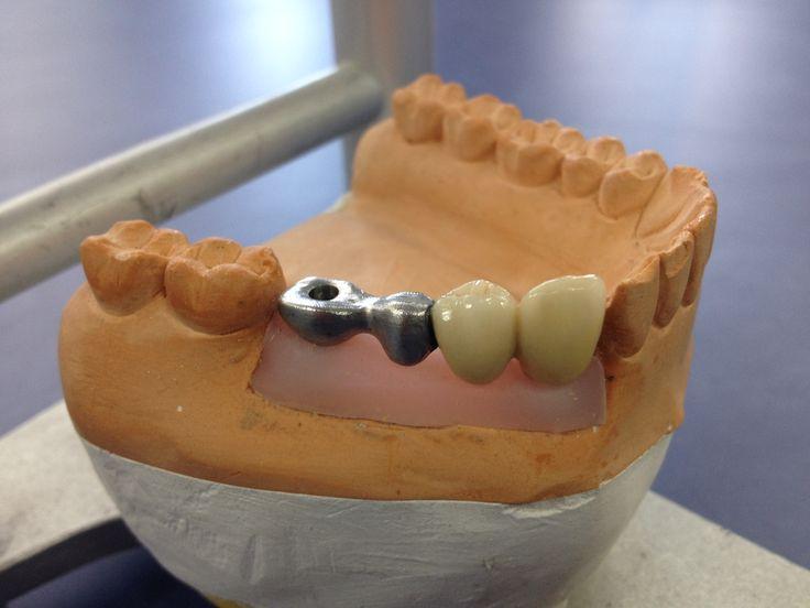 Prótesis fija atornillada sobre implantes