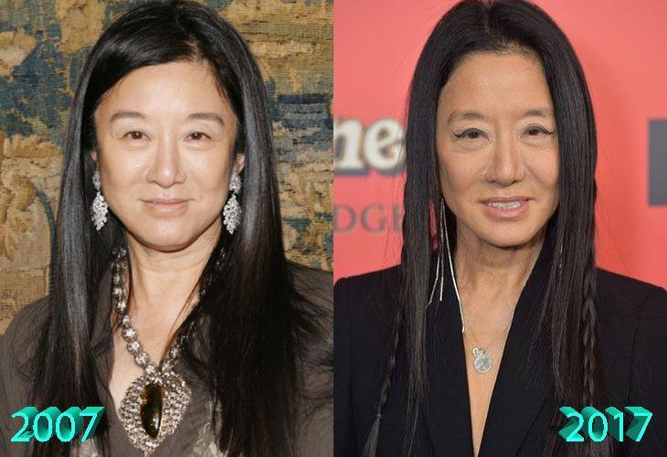 Vera Wang Plastic Surgery: A Designer's Polished New Look