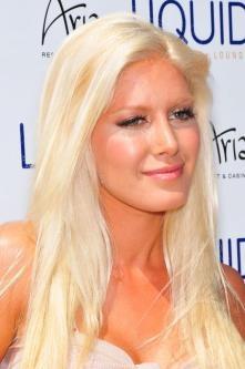 Heidi Montag- too much plastic surgery......yuck