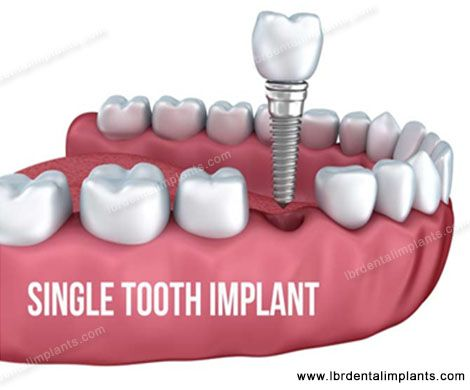 "The Single-Piece implants or Single Tooth Implant are highly unique in design and effective in function as it features prosthetic abutment and the surgical implant as a unit but not as two different entities. This eliminates the occurrence of ""Micro Gap"". And what's more, the patient need not wait months for the procedure to complete.  http://www.lbrdentalimplants.com/implant-services/single-piece-vs-two-piece-implants/"